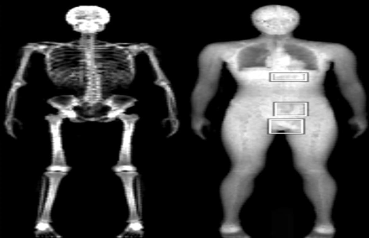The Tsa Is Cutting The Chord On Naked X-Ray Scanners -9836