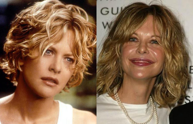 10 Hot Celebrities Who Destroyed Their Looks With Plastic