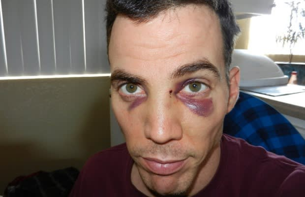 Mike Tyson Gave Steve O Two Black Eyes And A Broken Nose
