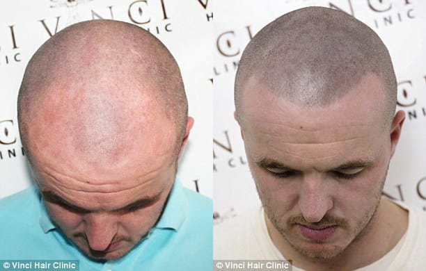 Shaved head hairline is still visible