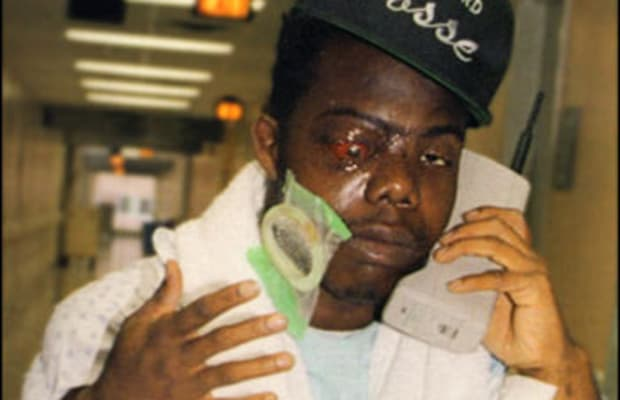 Bushwick Bill - How 21 Rappers Responded To Near-Death Experiences ...
