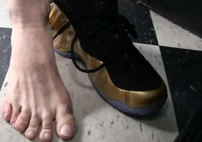 Boxer Danny Garcia Has Six Toes on His Right Foot