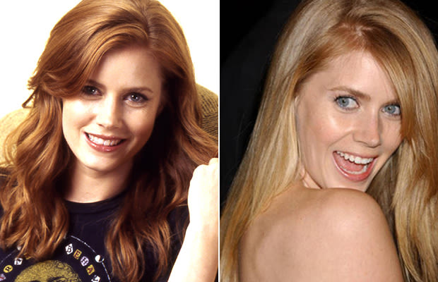 Have You Seen Amy Adams Nude Photos Before? - Ximage