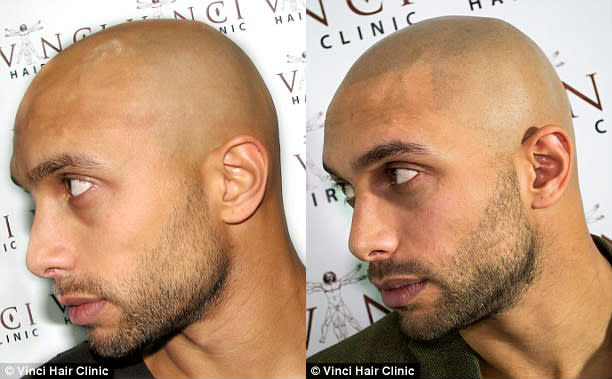 Bald guys are discovering micro scalp pigmentation complex for Shave before tattoo