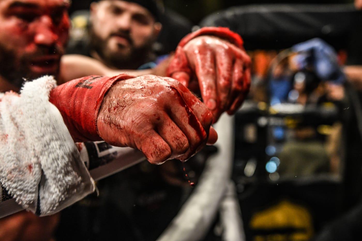 Artem Lobov Bare Knuckle Fighting Championship 2019