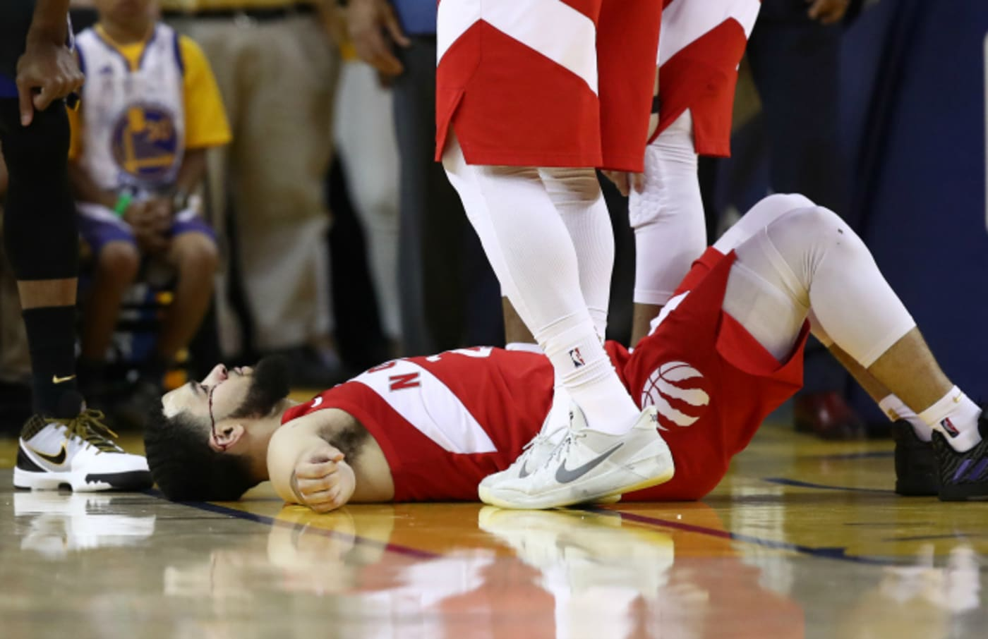 Fred VanVleet #23 of the Toronto Raptors reacts after taking an elbow to the forehead