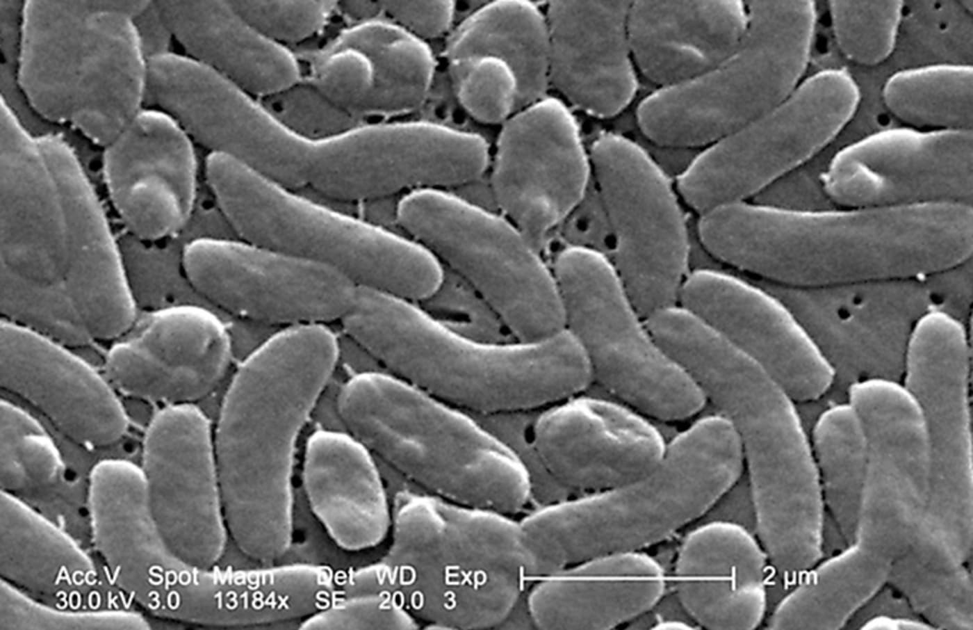 This is a photo of bacteria