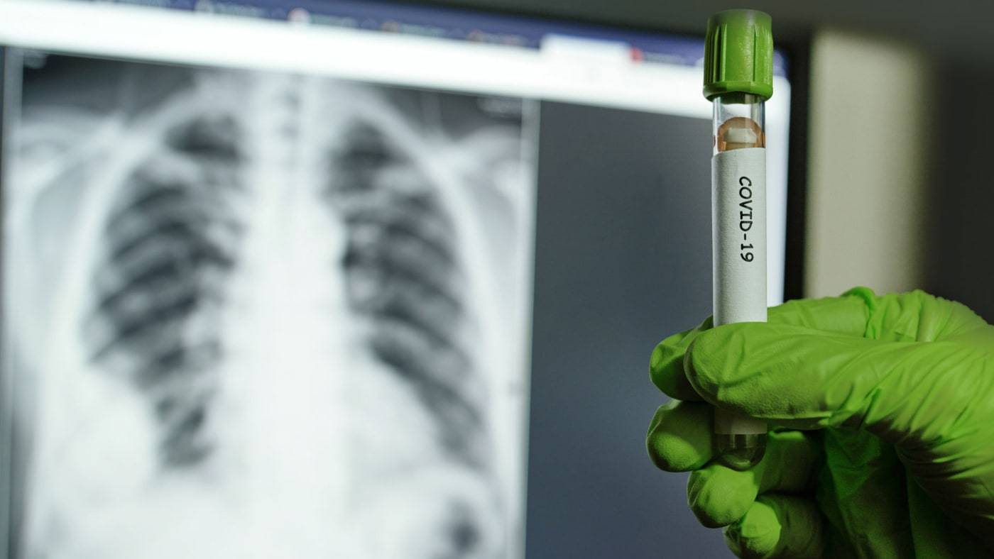 A doctor holds up a sample that tested positive for COVID.