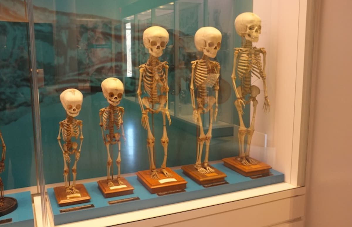 Unearthed Skeleton Shows How People in Fifth-Century Tried to Prevent Zombie Uprising