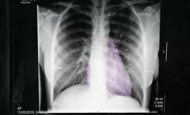 Justine Skye's '8 Ounces' EP.