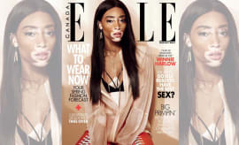 Winnie Harlow Lands Her First Cover With Elle Canada