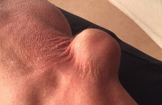 Steve Austin takes a picture of his injured elbow for Twitter.