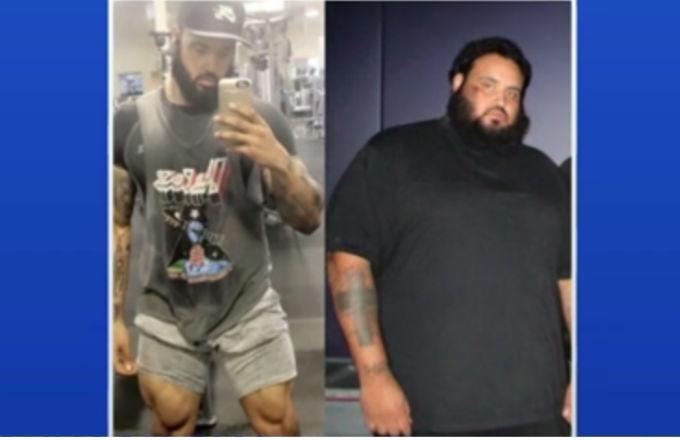 Man's 300 pound weight loss.