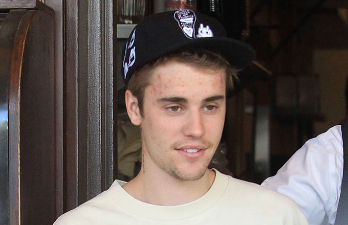Justin Bieber Sued for Sharing Paparazzi Photo of Himself on Instagram